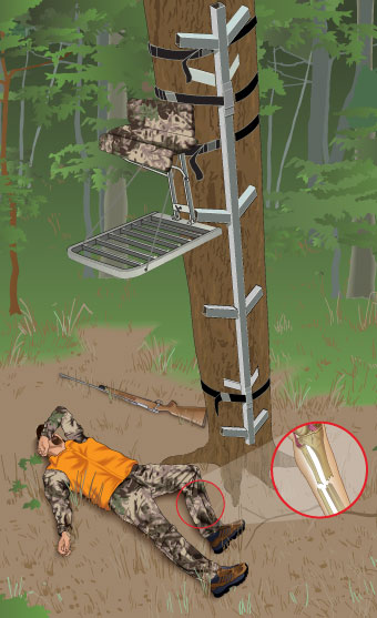 Illustration of injured hunter lying on the ground, who fell from a tree stand and who was not wearing an FAS