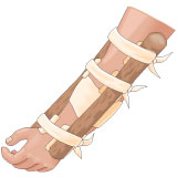 Use splints to stabilize a broken bone.